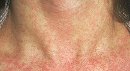 simptomy-krasnuxi-u-vzroslyx
