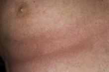 Как лечить атопический дерматит у взрослых