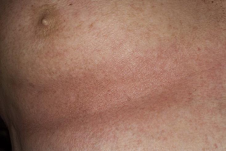 atopicheskij-dermatit-u-vzroslyx-lechenie-foto