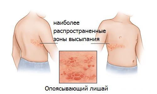 opojasyvajushhij-gerpes-lechenie-v-domashnih