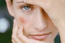 Появился купероз на лице, какие причины и лечение