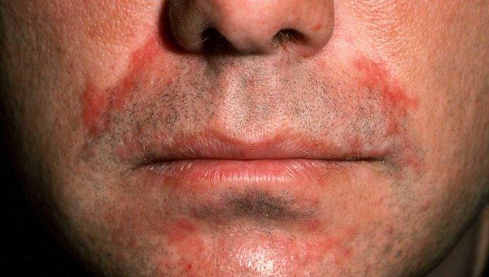 peroralnyj-dermatit-na-lice