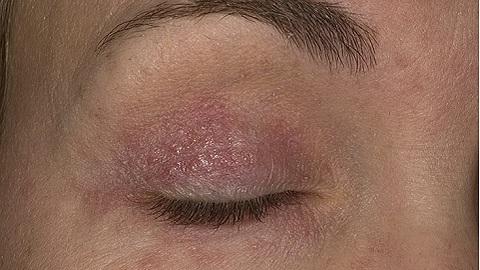 ekzematoznyj-dermatit-na-lice-foto