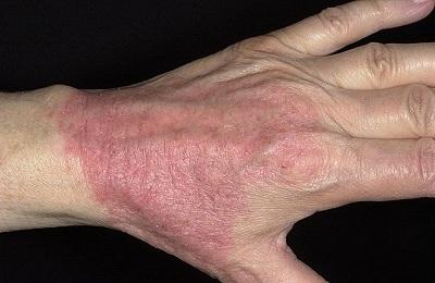 ekzematoznyj-dermatit