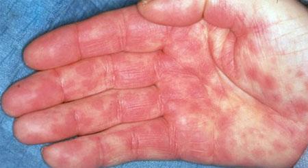 токсикодермии на ладони-foto