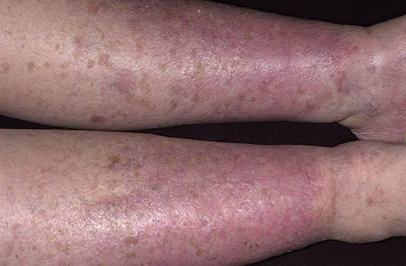 foto-varikoznyj-dermatit