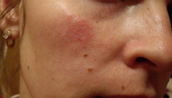allergicheskij-dermatit-lica