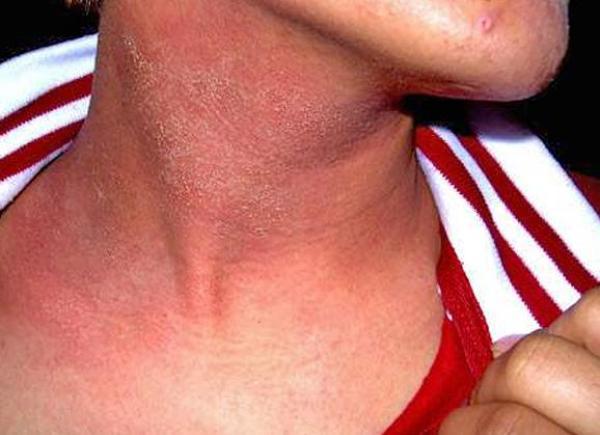 ekzematoznyj-dermatit-2