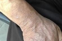 Все про дерматит на руках и виды, способы лечение