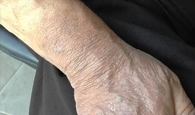 foto-dermatita-na-rukah