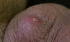 Пупырышки на яйцах у мужчин 61